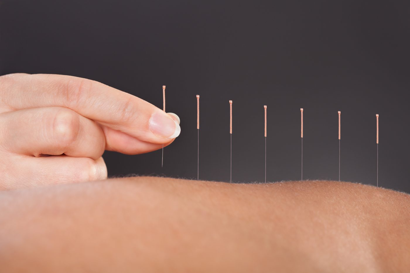 bedford acupuncture
